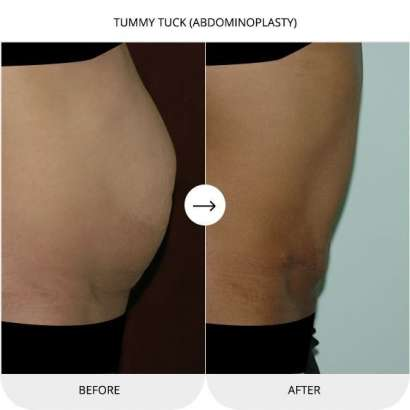 Tummy Tuck Treatment