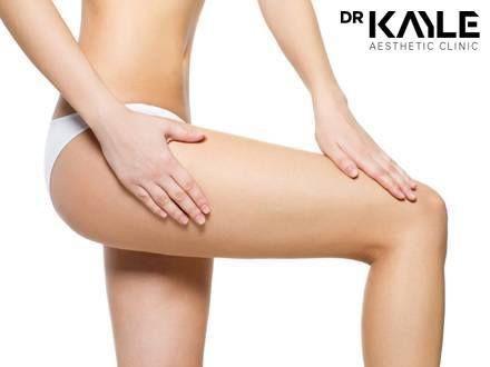 Cellulite Treatment in Dubai – Dr Kayle Aesthetic Clinic