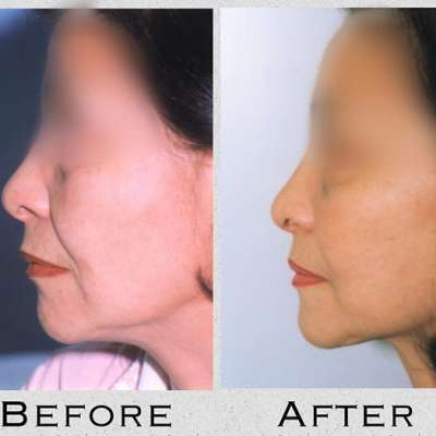 Cosmetic Face Lift Surgery