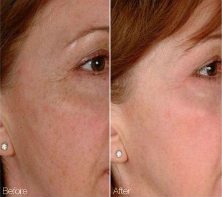 Laser Facial Rejuvenation