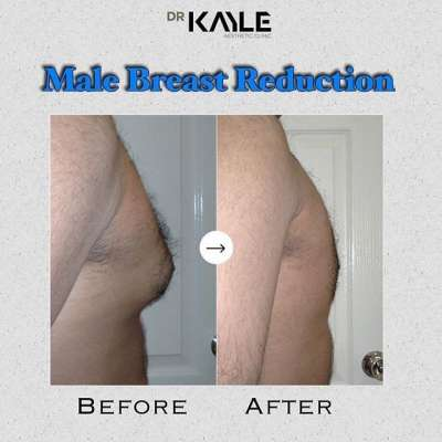 Male Breast Reduction Cosmetic Surgery