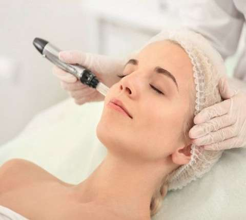 Say Goodbye to Wrinkles with Dermapen Microneedling