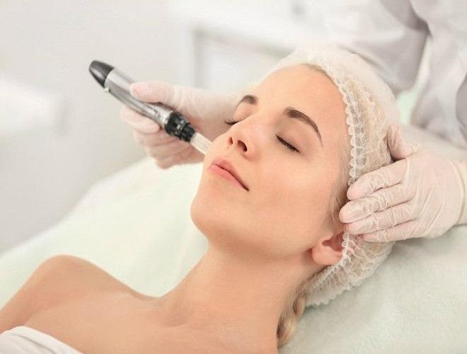 Dermapen Treatment