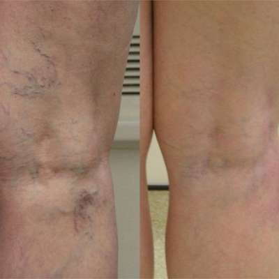 Sclerotherapy Veins Treatment