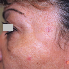 Before Double Eyelid Surgery