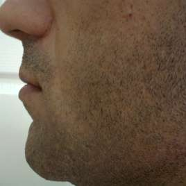 Surgical Lip Augmentation