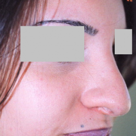 Rhinoplasty Dubai Reviews