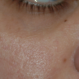 Laser Peel For Scars