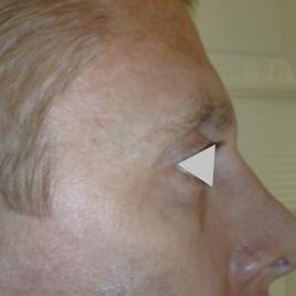 Under Eye Wrinkles Botox