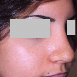 Rhinoplasty Dubai Before And After