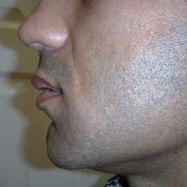 Lip Augmentation Surgery