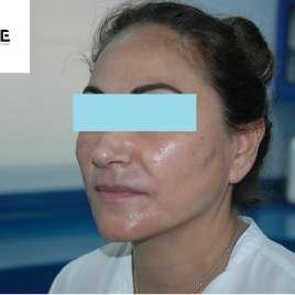 Non Surgical Face Lift Threading
