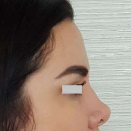 Hyaluronic Acid Injections for Nose Before After