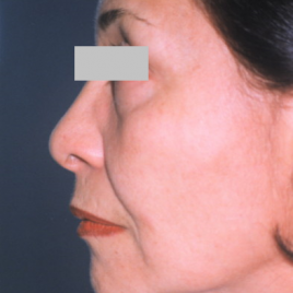 Facelift Surgery In Dubai