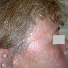 Laser Skin Peeling On Face