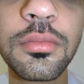 Upper Lip Augmentation