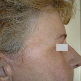 Laser Face Peel