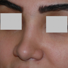 Hyaluronic Acid Injection Face