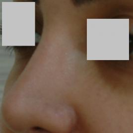 Hyaluronic Acid for Face