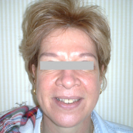 Laser Peeling Treatment
