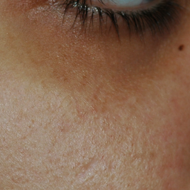 Laser Peel For Acne Scars