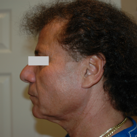 Before Laser Peel Treatment